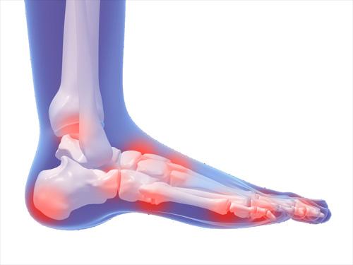 Боли в суставах стопы боли в суставах что это
