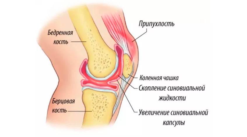 Îți doare articulațiile? durere în degetul mijlociu în articulație